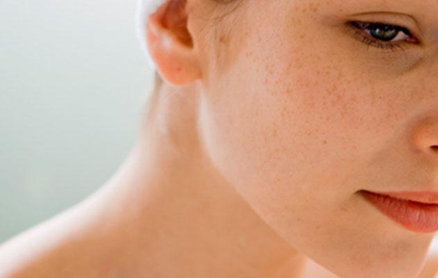 پوست-حساس