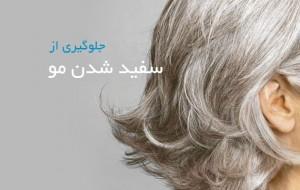 سفید-شدن-مو