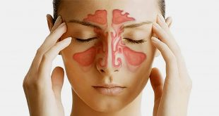 سردرد-سینوسی-چیست؟