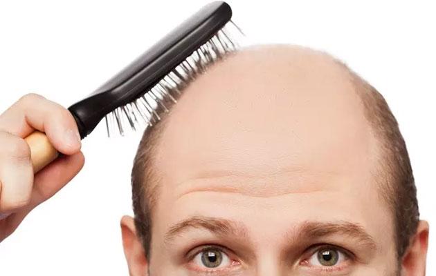 موی-کچل-مردان