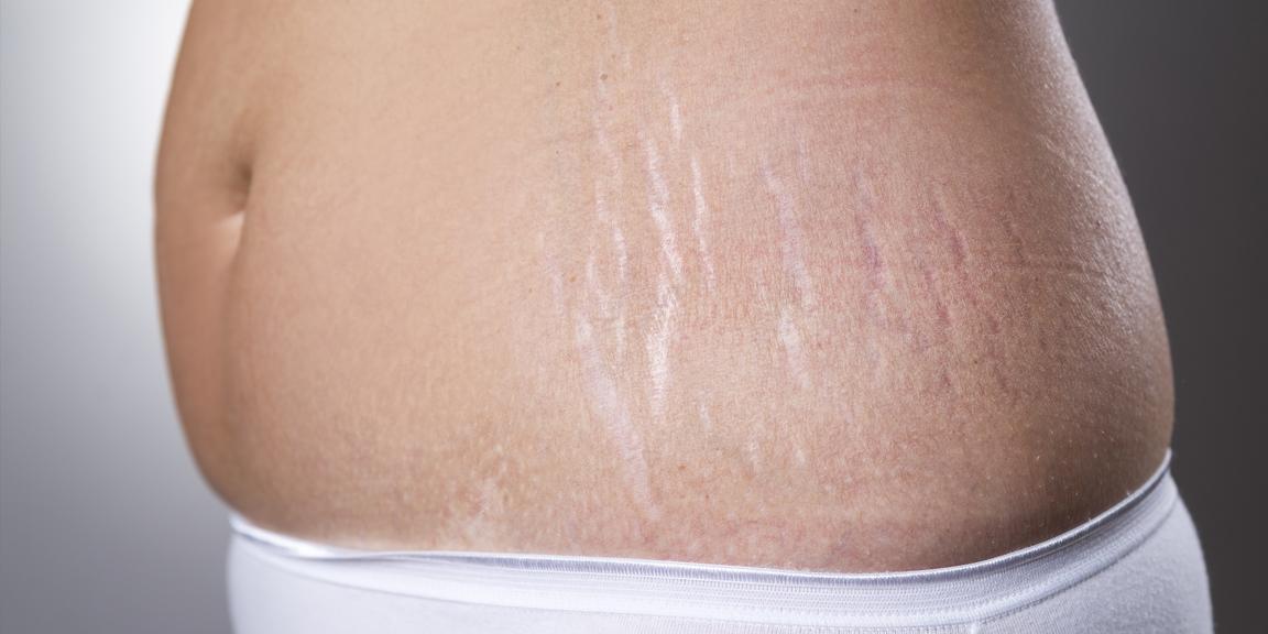 چگونگی کنترل ترک های پوستی پس از کاهش وزن